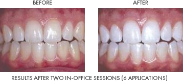Before Image of yellow teeth next to an After Image of whitened teeth. The caption Reads Results after two in-office sessions. 6 applications.